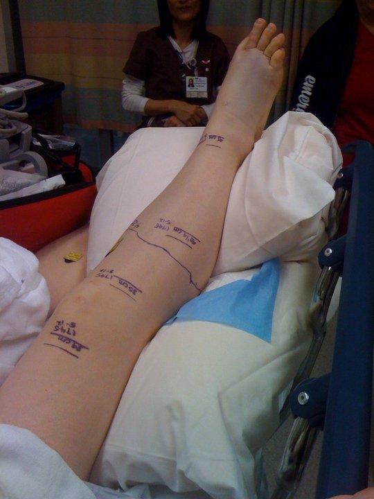 Snakebite leg 1